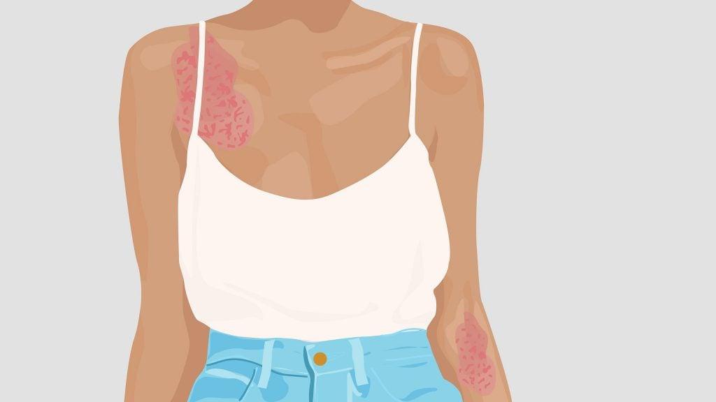 hudirritasjoner